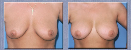 Breast Reconstruction: Get the Facts on Surgery