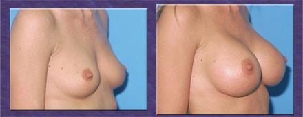 Dr allen breast reconstruction